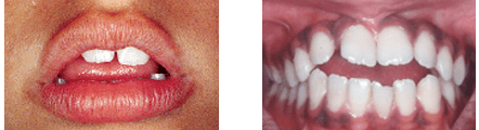 Myofunctional Disorder examples -- two sets of mouths showing mishapen teeth