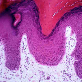 Histology slide of human skin, epidermis and dermis